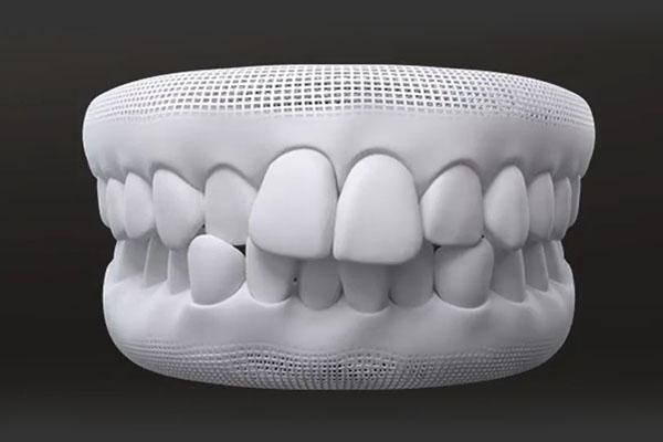 Over crowded teeth