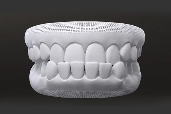 Under bite teeth