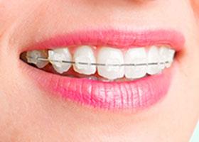 invisible braces clinic