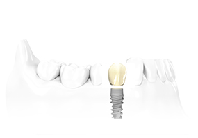 Conventional tooth implants