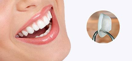 dental veneers clinic