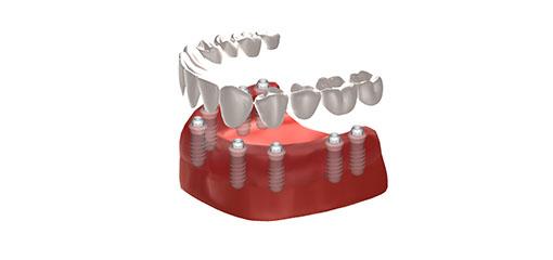 full bridge implants