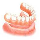 bangkok dentures