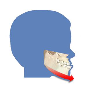 Ortho surgery