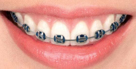 conventional braces