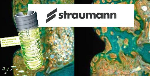dental implants straumann