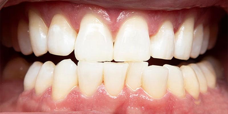 brighten teeth