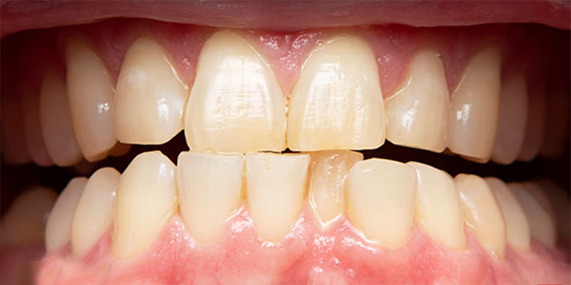 dull teeth