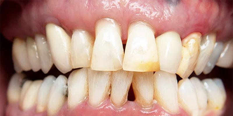 improved teeth