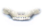 zygomatic implant