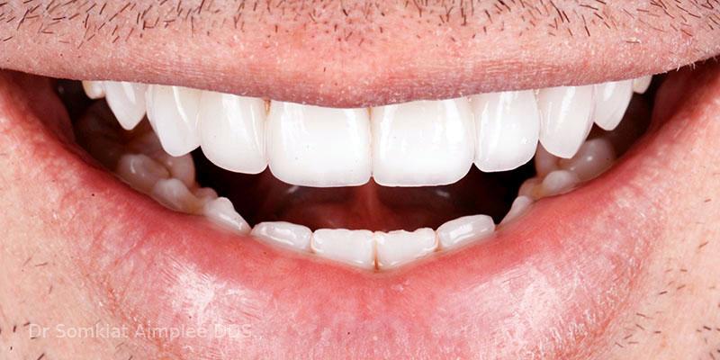 bangkok tooth bridge