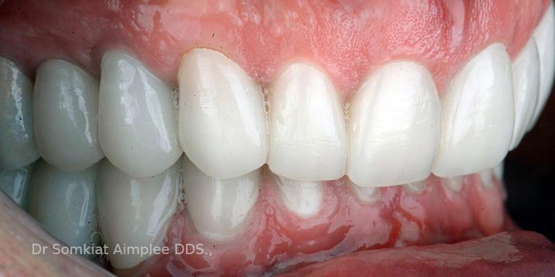 bangkok dental bridge
