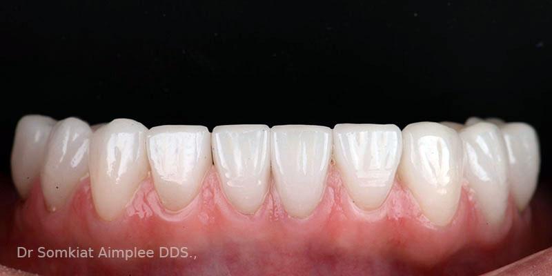 after teeth crowns