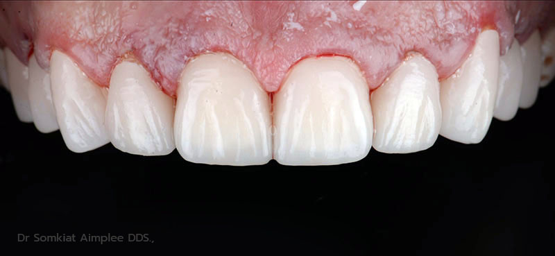after tooth crowns