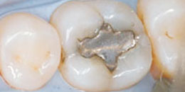 Silver amalgam fillings
