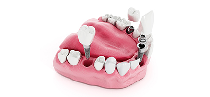 Dental Implant Bangkok