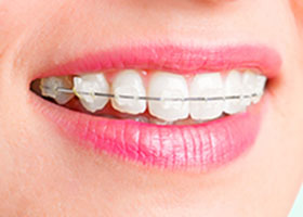 invisible braces clinic