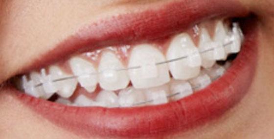 Clarity braces