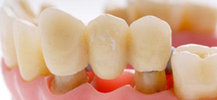 Dental bridge clinic