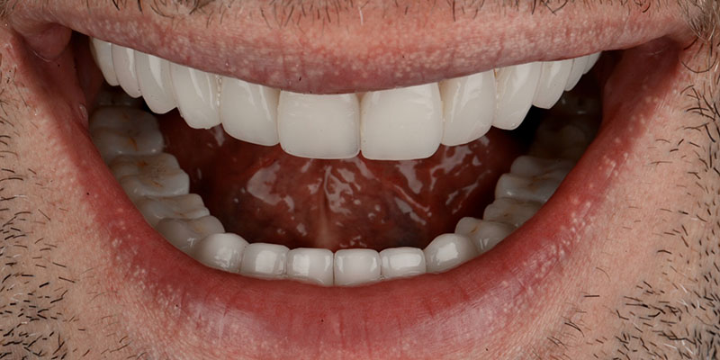 teeth replaced