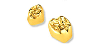 Full gold crowns