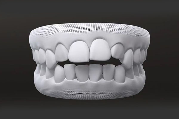 Open bite teeth