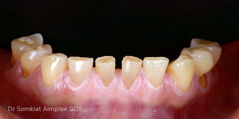 before teeth crowns